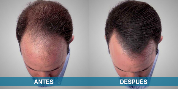 Antes y despues implante de cabello - clinica Renacer